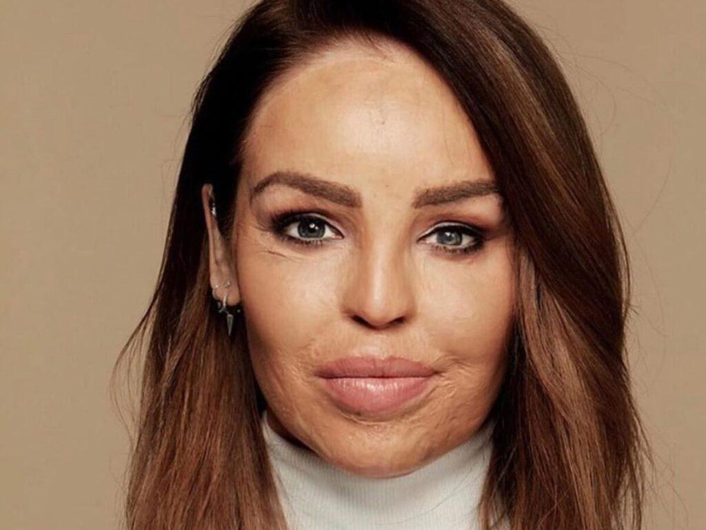 Apresentadora britânica comemora resultado das 400 cirurgias que fez, após ex-namorado jogar ácido em seu rosto