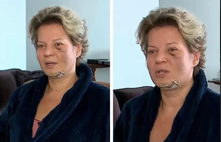 Deputada Federal Joice Halsseman sofre fraturas e não sabe como aconteceu