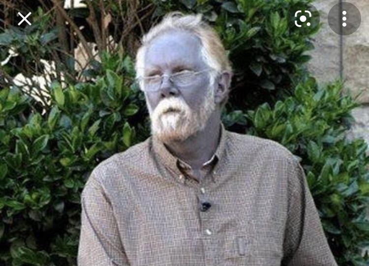 O mistério do americano que tinha pele azul
